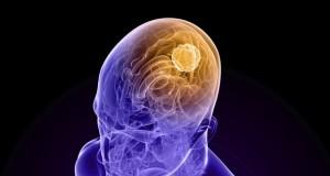 tumore cervello